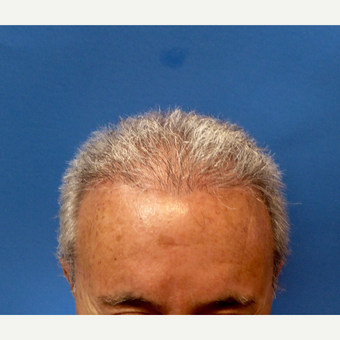 55-64 year old woman treated with Hair Transplant after 3130211