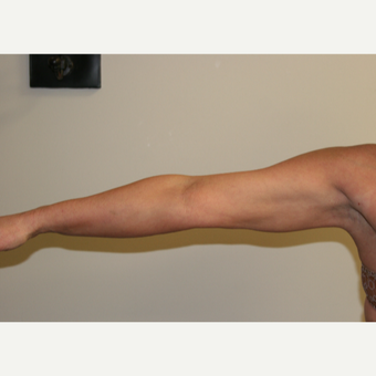45-54 year old woman treated with Vaser Liposuction after 2998742