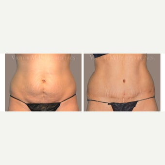 25-34 year old woman treated with Tummy Tuck before 2107535