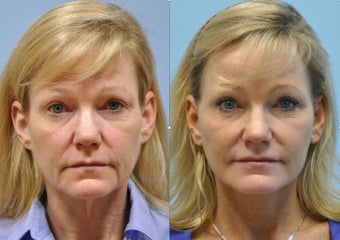 48 year old woman after facelift before 1252258