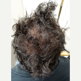 42 year old man treated with FUE Hair Transplant after 3724536