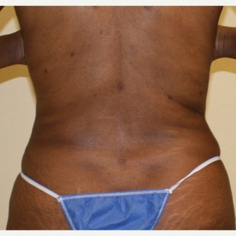 45-54 year old woman treated with Liposuction Revision after 2040590