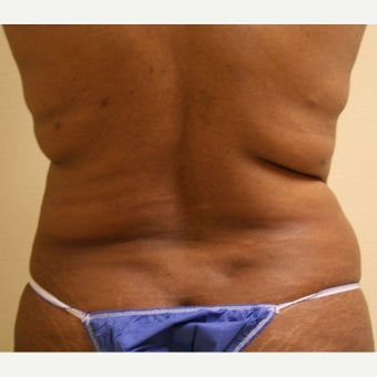 45-54 year old woman treated with Liposuction Revision before 2040590