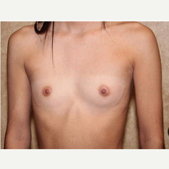 Saline Implants - Breast Augmentation before 3324900