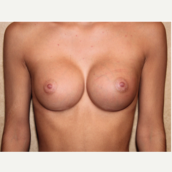 Saline Implants - Breast Augmentation after 3324900