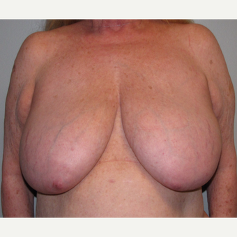 55-64 year old woman treated with Breast Reduction before 3175197