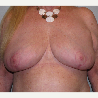 55-64 year old woman treated with Breast Reduction after 3175197