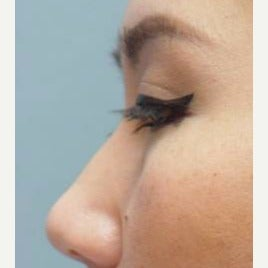 18-24 year old woman treated with Non Surgical Nose Job before 1803158