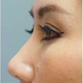 18-24 year old woman treated with Non Surgical Nose Job after 1803158