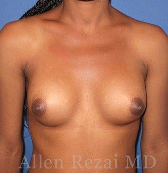 Bilateral Breast Augmentation - Patient has type I-II Tuberous Breast Deformity - Pre- & 13 Months Post-op after 2255559
