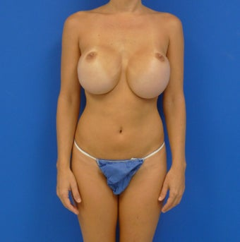 35 y.o. female who had a revision for mal-positioned silicone breast implants before 668540