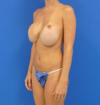 35 y.o. female who had a revision for mal-positioned silicone breast implants 668540