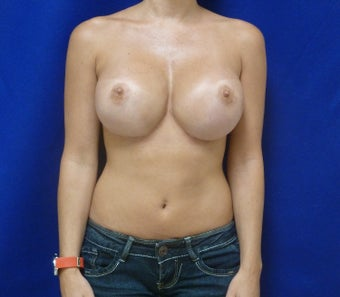 35 y.o. female who had a revision for mal-positioned silicone breast implants after 668540