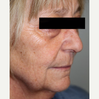 55-64 year old woman treated with Facelift before 2878108