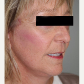 55-64 year old woman treated with Facelift after 2878108
