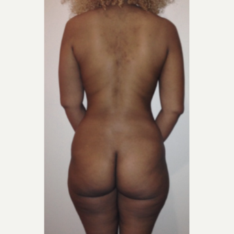 25-34 year old woman treated with Tumescent Liposuction after 2245834