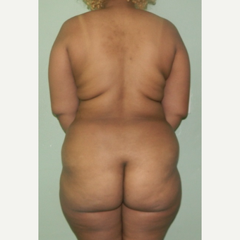 25-34 year old woman treated with Tumescent Liposuction before 2245834