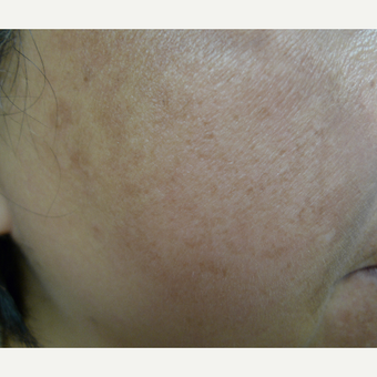 10 weeks to better skin texture and pigmentation reduction before 3114388