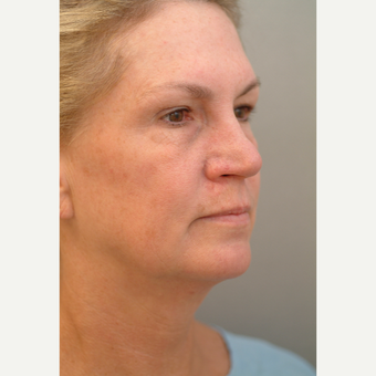 55-64 year old woman treated with Neck Lift before 3764014