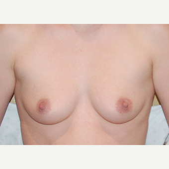 35-44 year old woman treated with Breast Implants before 3319881