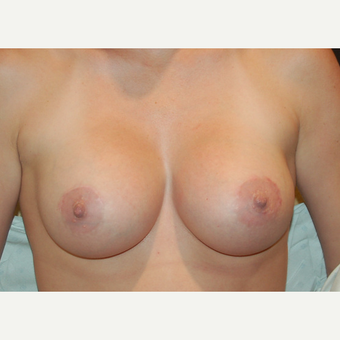 35-44 year old woman treated with Breast Implants after 3319881