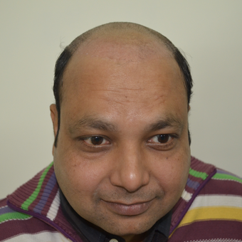 35-44 year old man treated with Hair Transplant before 2723505