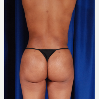 25-34 year old woman treated with Brazilian Butt Lift after 3418283