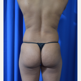 25-34 year old woman treated with Brazilian Butt Lift before 3418283