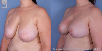 45-54 year old man treated with Breast Lift with Implants after 3767729