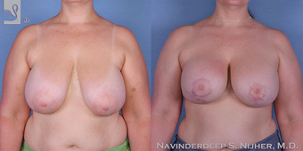 45-54 year old man treated with Breast Lift with Implants before 3767729