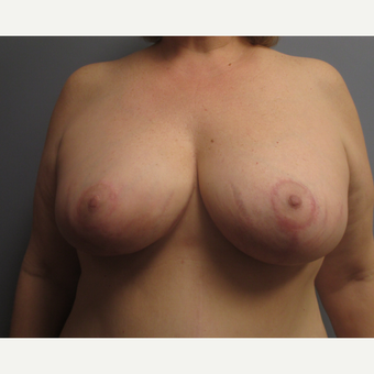 45-54 year old man treated with Breast Lift after 3539075