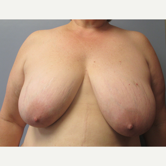 45-54 year old man treated with Breast Lift before 3539075