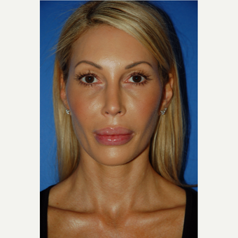 35-44 year old woman treated with Revision Rhinoplasty after 3288668