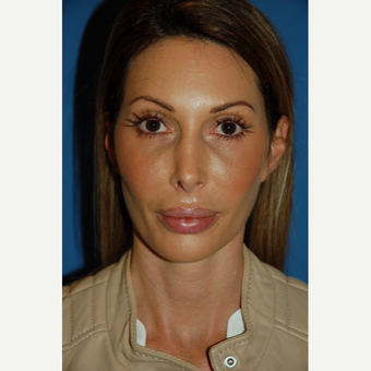 35-44 year old woman treated with Revision Rhinoplasty before 3288668