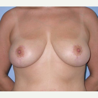35-44 year old woman treated with Breast Reduction after 1605015