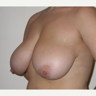 35-44 year old woman treated with Breast Reduction 1605015