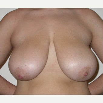 35-44 year old woman treated with Breast Reduction before 1605015