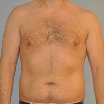 25-34 year old man treated with Male Breast Reduction after 3125521