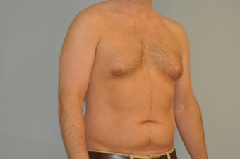 25-34 year old man treated with Male Breast Reduction 3125521