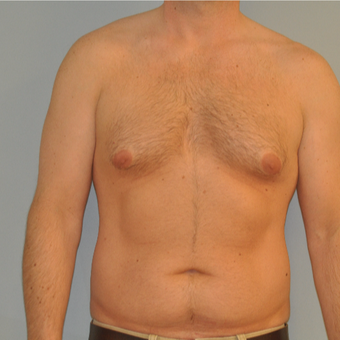25-34 year old man treated with Male Breast Reduction before 3125521