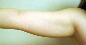 Laser Liposuction to Arms before 1164849