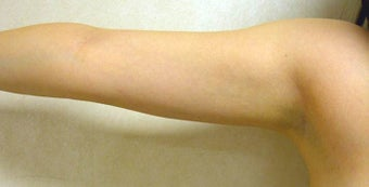 Laser Liposuction to Arms after 1164849