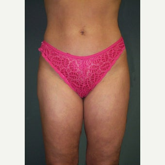 35-44 year old woman treated with Vaser Liposuction after 2136842