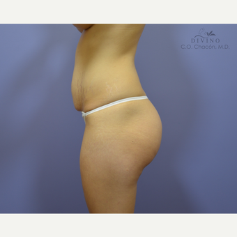 25-34 year old woman treated with Butt Augmentation before 3386602