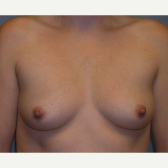 25-34 year old woman treated with Breast Implants before 3175538