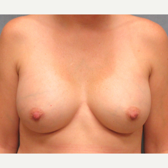 25-34 year old woman treated with Breast Implants after 3175538