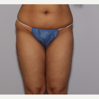 25-34 year old woman treated with Liposuction after 3325216