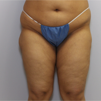 25-34 year old woman treated with Liposuction before 3325216