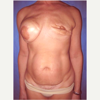 57 year old woman treated with DIEP flap Breast Reconstruction Revision before 3725105