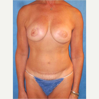 57 year old woman treated with DIEP flap Breast Reconstruction Revision after 3725105